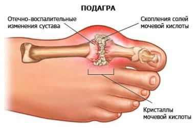 Ревматоидный артрит и отечность ног