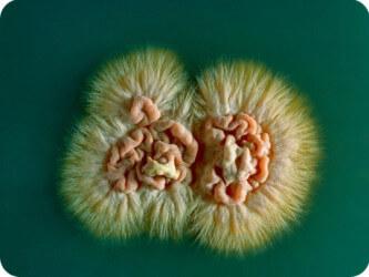 паразиты волосистой части головы человека