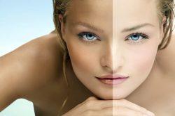 Почему темнеет кожа на лице и теле
