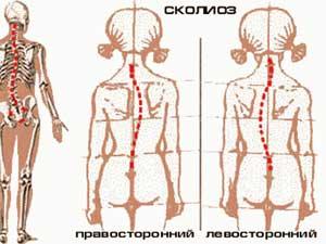 ортопедические проблемы у детей до 3 летортопедические проблемы у детей до 3 лет