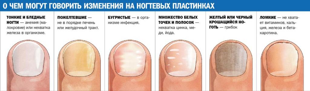 Молочный гриб лечение грибок ногтя