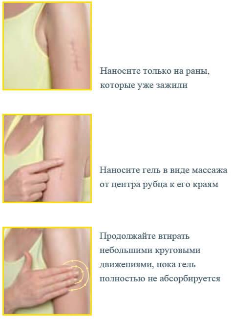Мазь для заживления шрамов