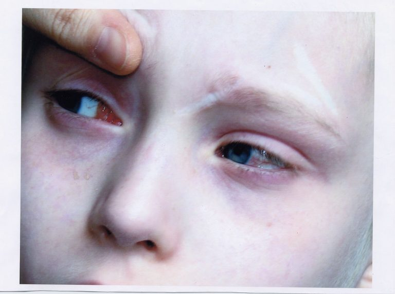 Von recklinghausen 2019s disease (vrd) is a genetic disorder characterized by the growth of tumors on the nerves