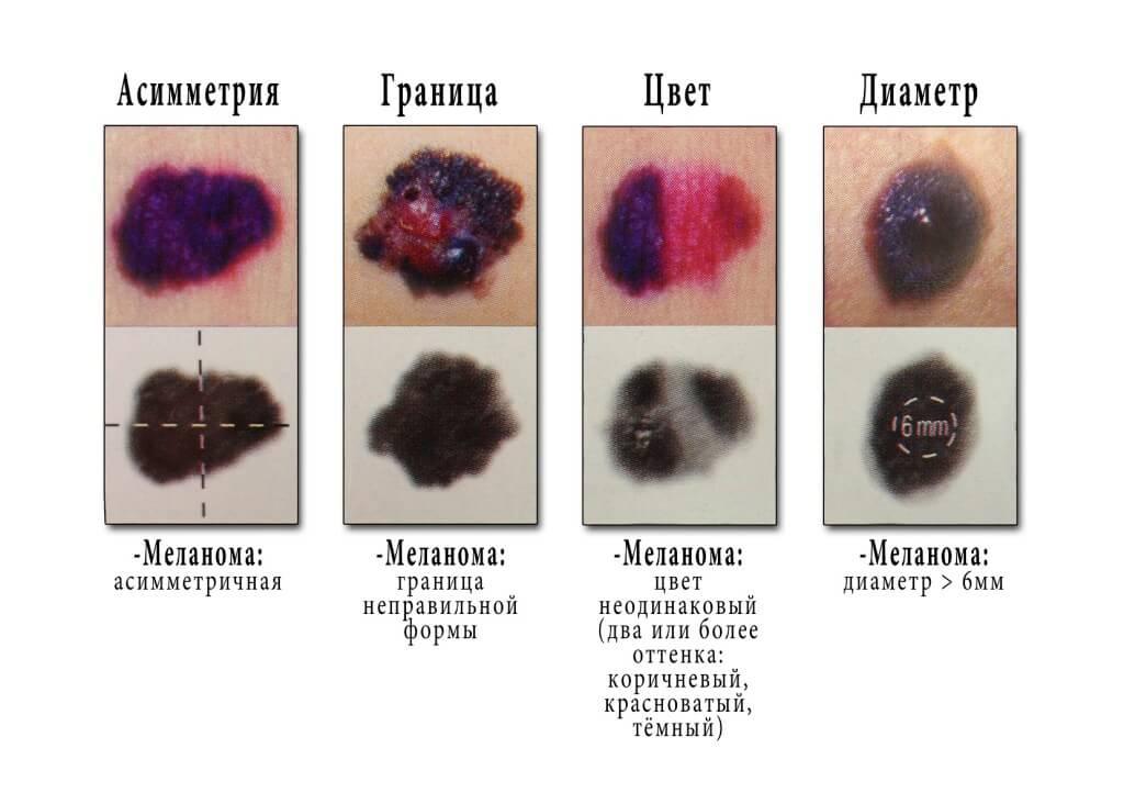 меланоз