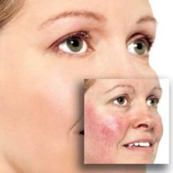 Люди с особо чувствительной кожей: причины проблемы