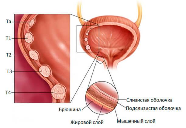 Рак мочевого пузыря у мужчин: симптомы, диагностика и лечение