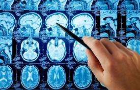 Первые симптомы проблем с головным мозгом
