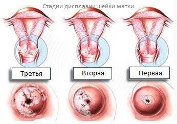Лечение орви у детей 2 лет препараты