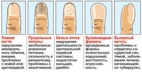 лейконихии - белые пятна на ногтях