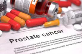 Рак простаты: симптомы, признаки, диагностика и лечение. Современный опыт
