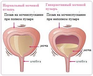 Нейрогенный мочевой пузырь у пожилых лечение lechenieukitejuj.nlinks.ru