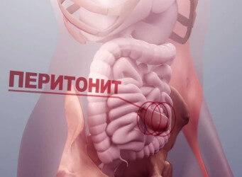 Что такое «острый живот»: симптомы, причины