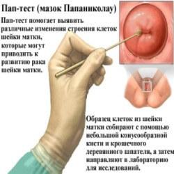 Дисплазия шейки матки: причины, симптомы, диагностика и лечение