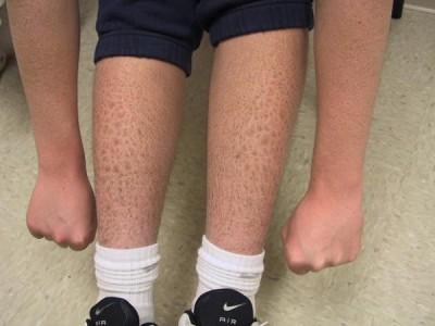Заболевание кожи ихтиоз: причины возникновения, симптомы, лечение