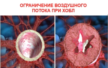 Кто болеет ретинопатией