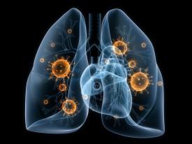 Пневмония: симптомы и лечение у взрослых