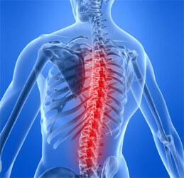 Боль в спине: наиболее распространенные причины появления