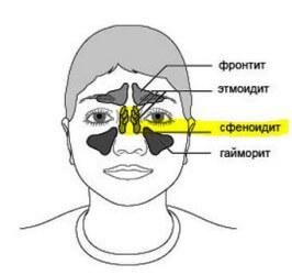 Сфеноидит: причины, симптомы, диагностика и лечение