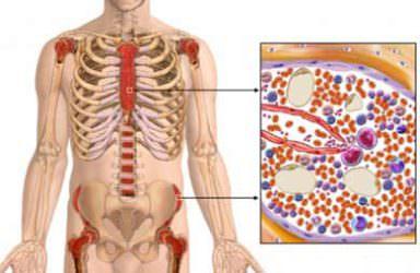 Миеломная болезнь: причины, симптомы и диагностика заболевания