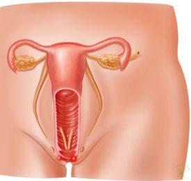 Современные эффективные способы лечения эрозии шейки матки