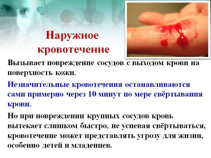 С чем может связано кровотечение