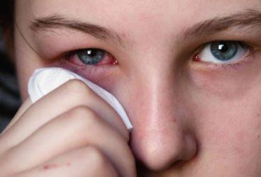 девушка держится за покрасневший глаз