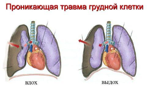 проникающая травма грудной клетки схема