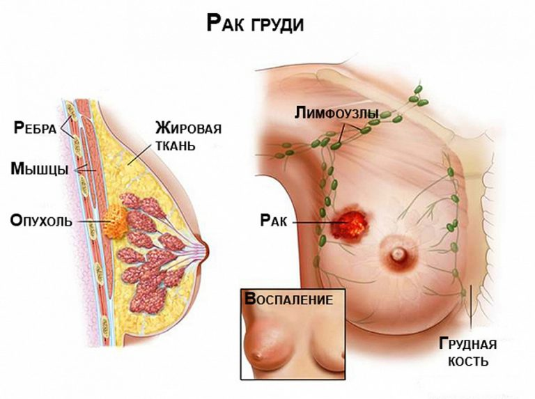 Почему образуются кисты в молочной железе