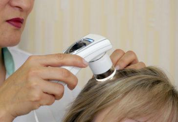 диагностика проблем с волосами