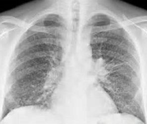 метастазы в легких при рентгене