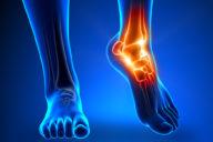 Первая помощь при травмах стопы и голеностопного сустава
