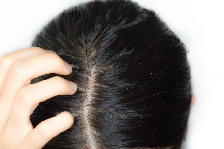 Масла для волос для жирных волос