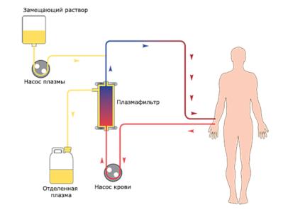 Плазмаферез схема
