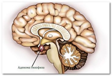 аденома гипофиза пролактинома
