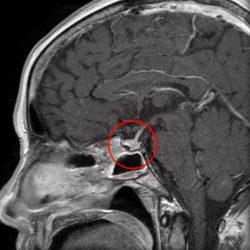Пролактинома на МРТ