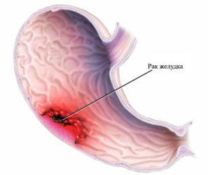 рак желудка картинка