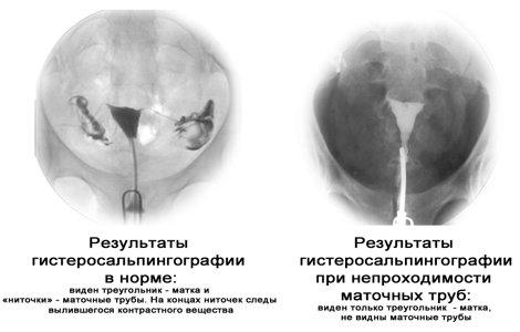 Аменорея причины симптомы лечение