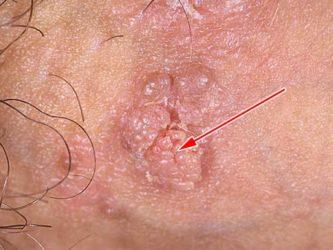 Вирус папиллому человека во время беременности