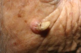 Кожный рог симптомы и лечение
