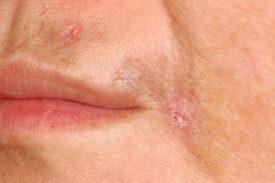 Почему возникает атрофия кожи виды симптомы атрофии