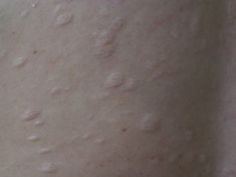 пятнистая атрофия кожи