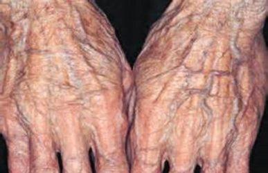 старческая атрофия кожи