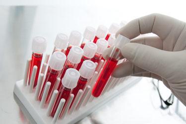 анализ крови на с-пептид