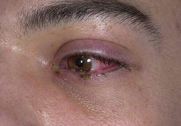 лечение блефарита лекарственные препараты
