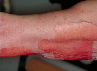 синдром лайелла симптомы