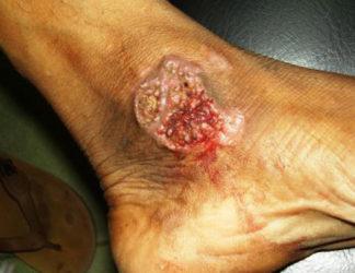 бородавчатый туберкулез кожи