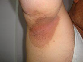 Эритразма у мужчин и женщин симптомы и лечение