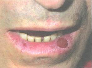 эритроплазия кейра на губе