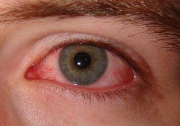 поражение глаз при синдрома Рейтера