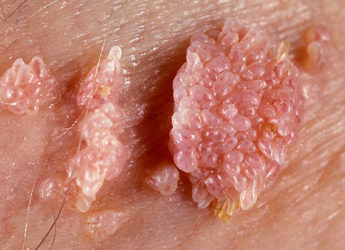 Вирус папилломы человека 16 18 типа у мужчин